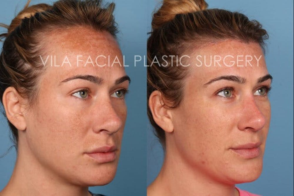 Forehead Reduction Gallery - Patient 20061800 - Image 3