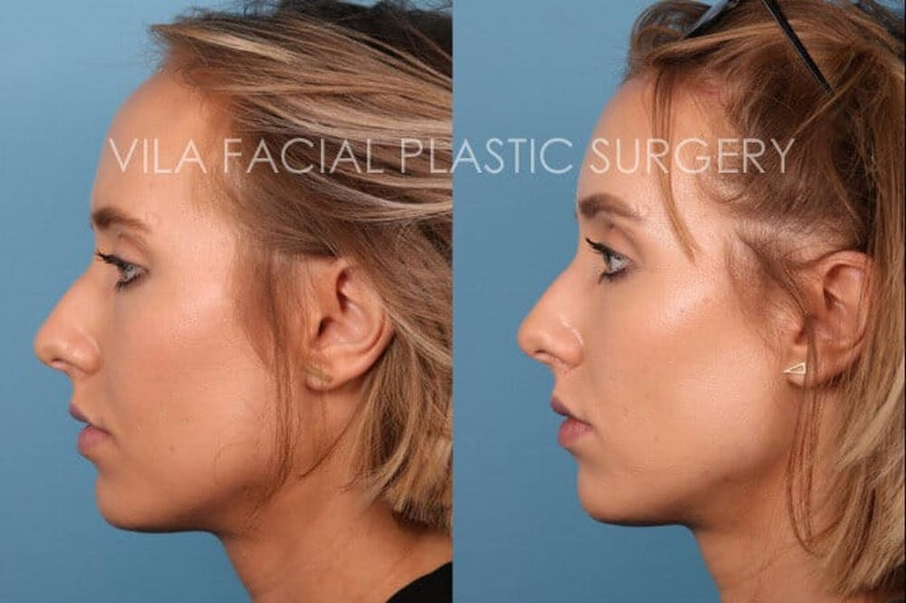 Forehead Reduction Gallery - Patient 20061801 - Image 3