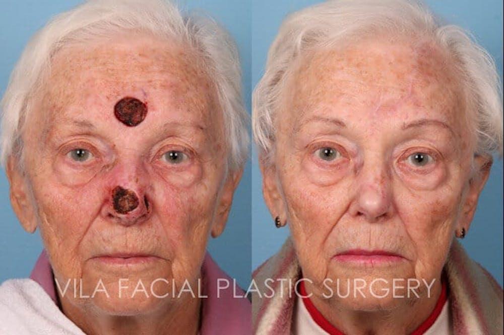 Facial Reconstruction Gallery - Patient 20081174 - Image 1