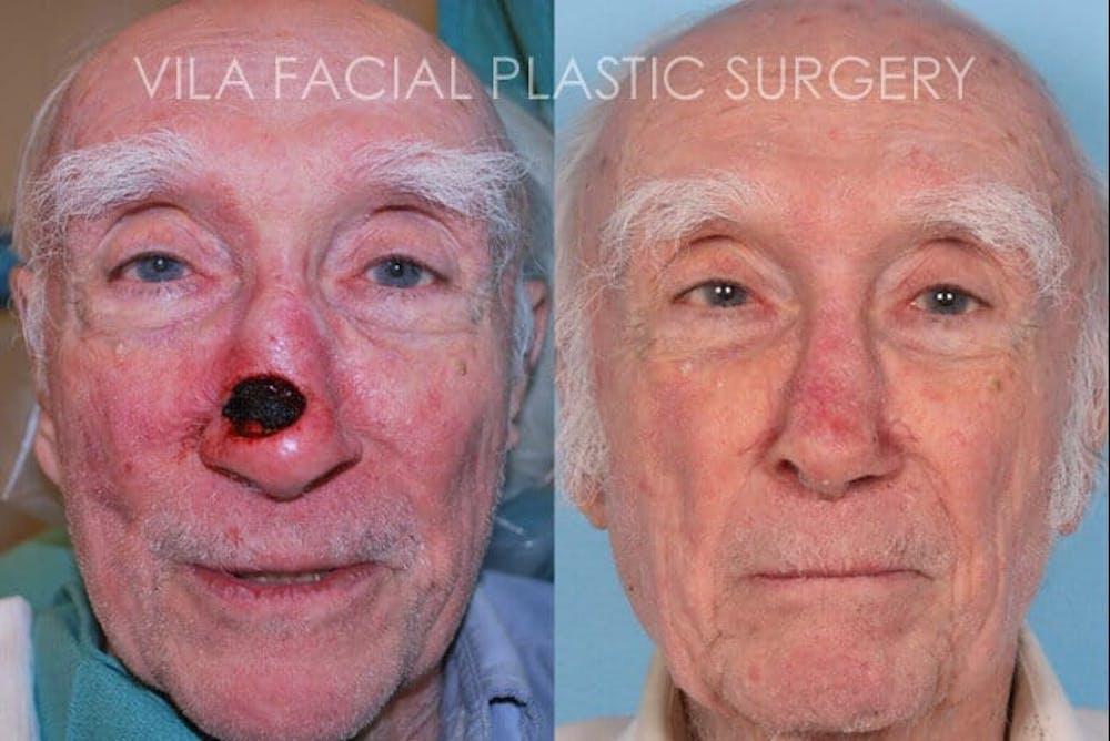 Facial Reconstruction Gallery - Patient 20081175 - Image 1