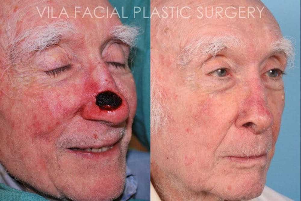 Facial Reconstruction Gallery - Patient 20081175 - Image 2