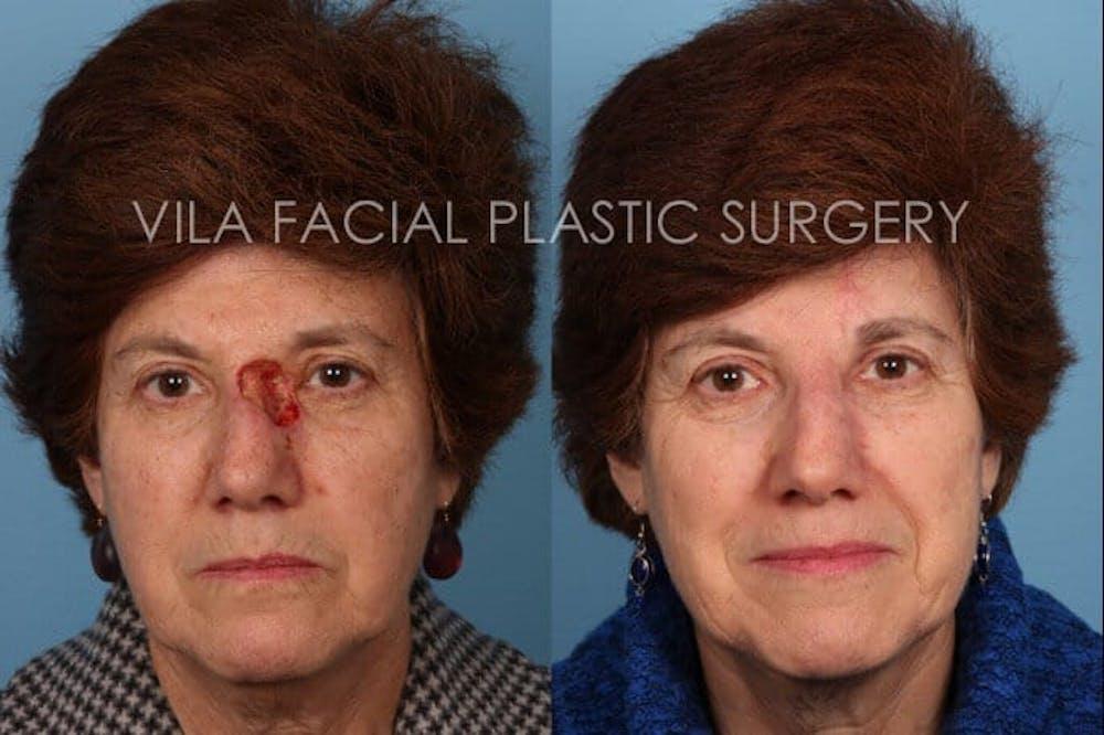 Facial Reconstruction Gallery - Patient 20081177 - Image 1