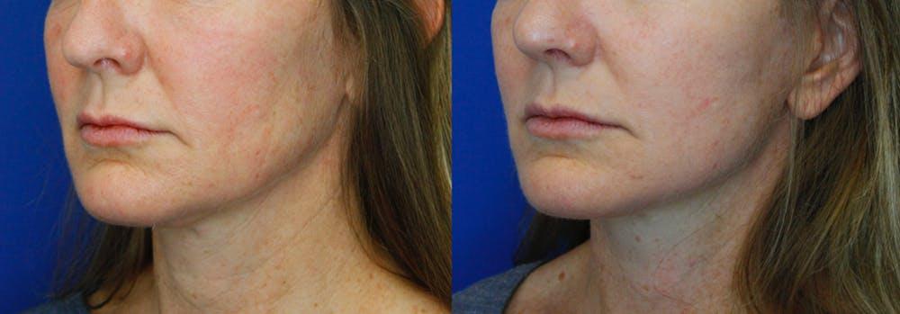 Facelift Gallery - Patient 51666452 - Image 2