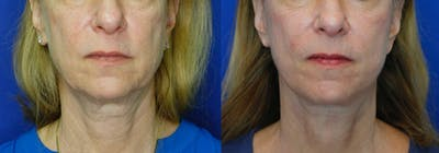 Facelift Gallery - Patient 51666453 - Image 1