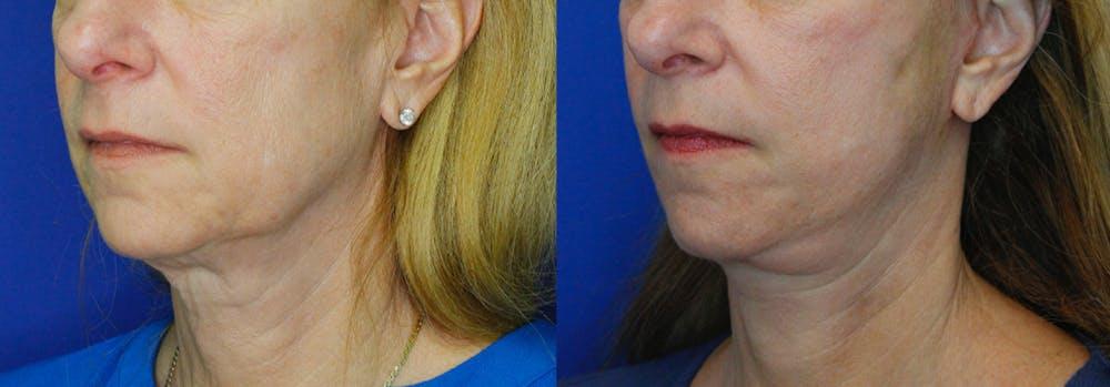 Facelift Gallery - Patient 51666453 - Image 2