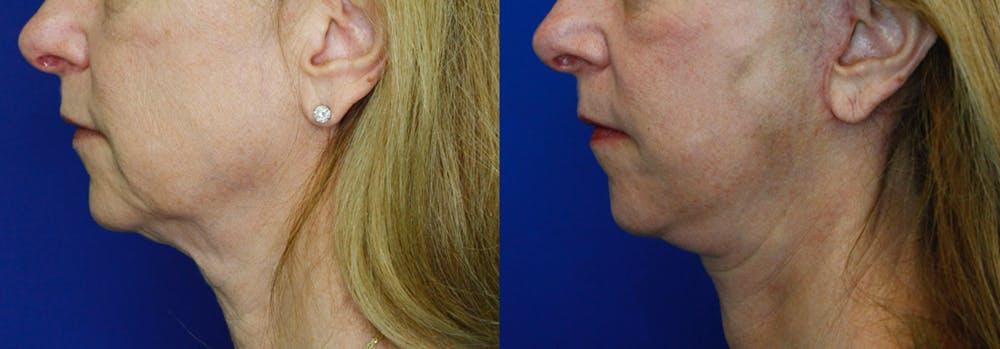 Facelift Gallery - Patient 51666453 - Image 3