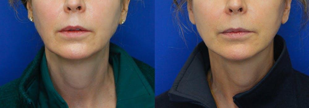 Facelift Gallery - Patient 51666454 - Image 1