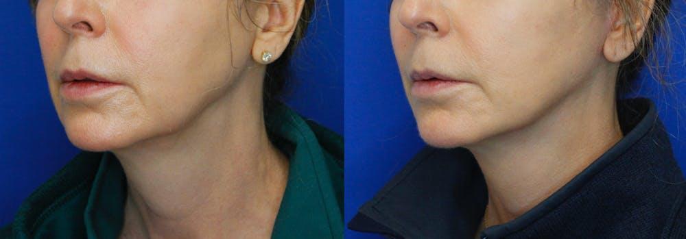 Facelift Gallery - Patient 51666454 - Image 2
