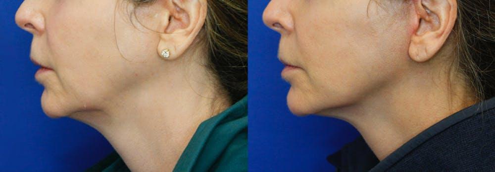Facelift Gallery - Patient 51666454 - Image 3