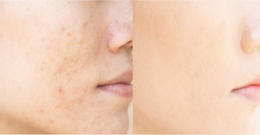 why do acne scars form?
