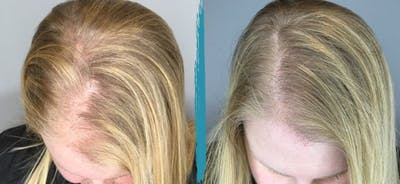 PRP Hair Loss Treatments Gallery - Patient 18616195 - Image 1