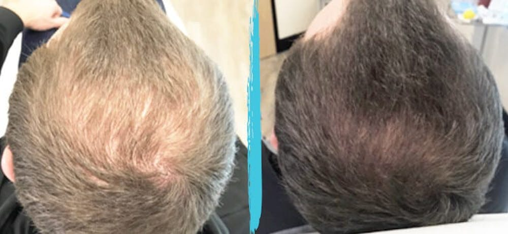PRP Hair Loss Treatments Gallery - Patient 18616196 - Image 1