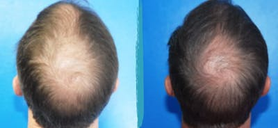 PRP Hair Loss Treatments Gallery - Patient 18616198 - Image 1