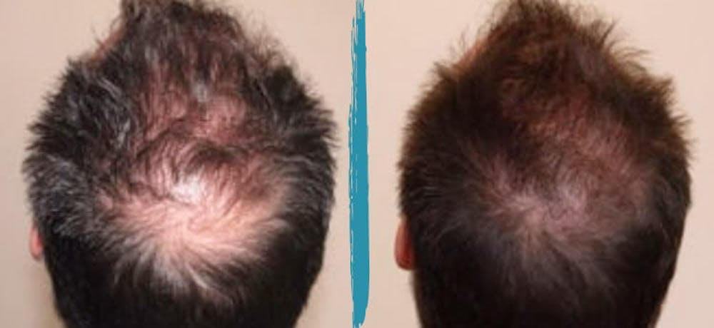 PRP Hair Loss Treatments Gallery - Patient 18616199 - Image 1