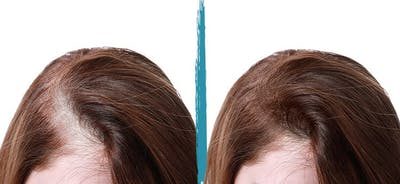 PRP Hair Loss Treatments Gallery - Patient 18616200 - Image 1