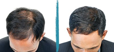 PRP Hair Loss Treatments Gallery - Patient 18616201 - Image 1