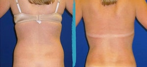 Before and after photos of VASER Lipo patient in NYC