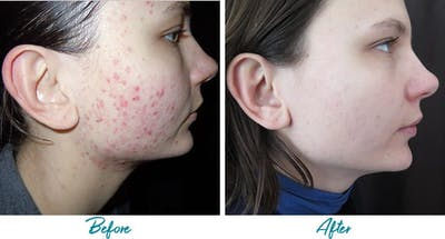 Acne Scars Gallery - Patient 18616220 - Image 1