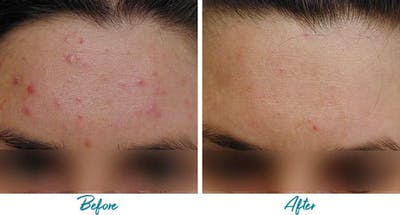 Acne Scars Gallery - Patient 18616221 - Image 1