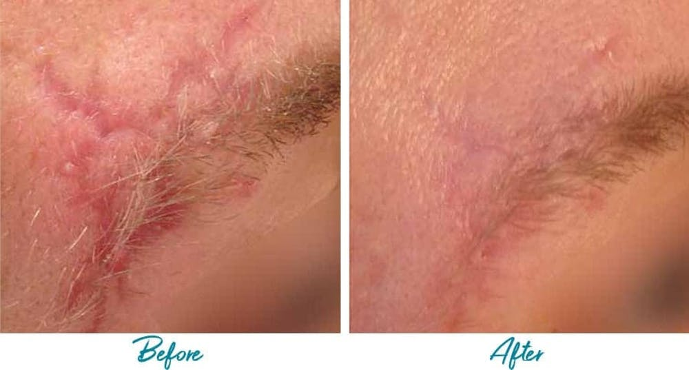 Acne Scars Gallery - Patient 18616223 - Image 1