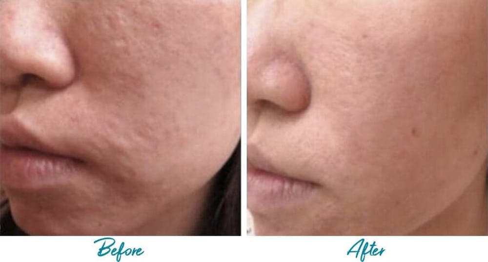 Acne Scars Gallery - Patient 18616224 - Image 1