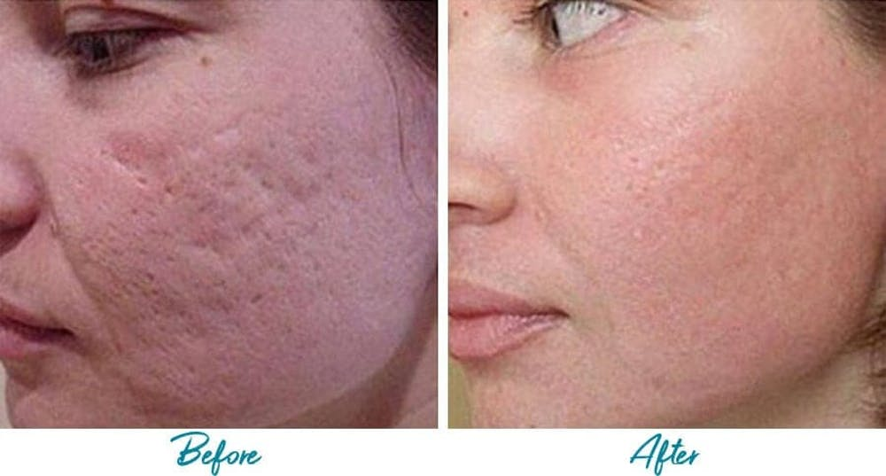 Acne Scars Gallery - Patient 18616225 - Image 1