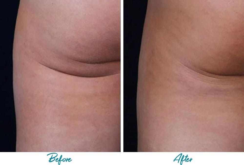 Profound RF Cellulite Gallery - Patient 18616340 - Image 1