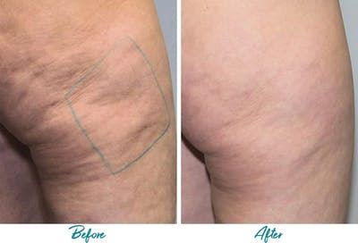 Profound RF Cellulite Gallery - Patient 18616341 - Image 1