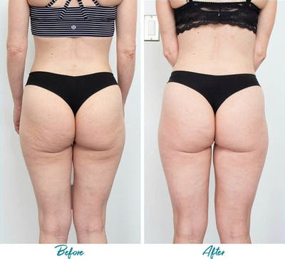 Profound RF Cellulite Gallery - Patient 18616342 - Image 1