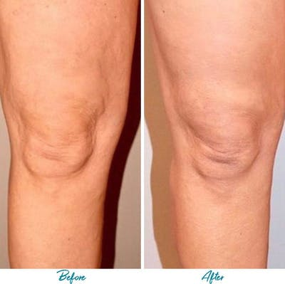 Profound RF Cellulite Gallery - Patient 18616344 - Image 1