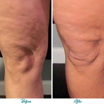 Profound RF Cellulite Gallery - Patient 18616345 - Image 1