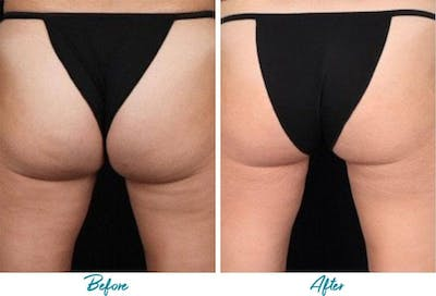 Profound RF Cellulite Gallery - Patient 18616346 - Image 1