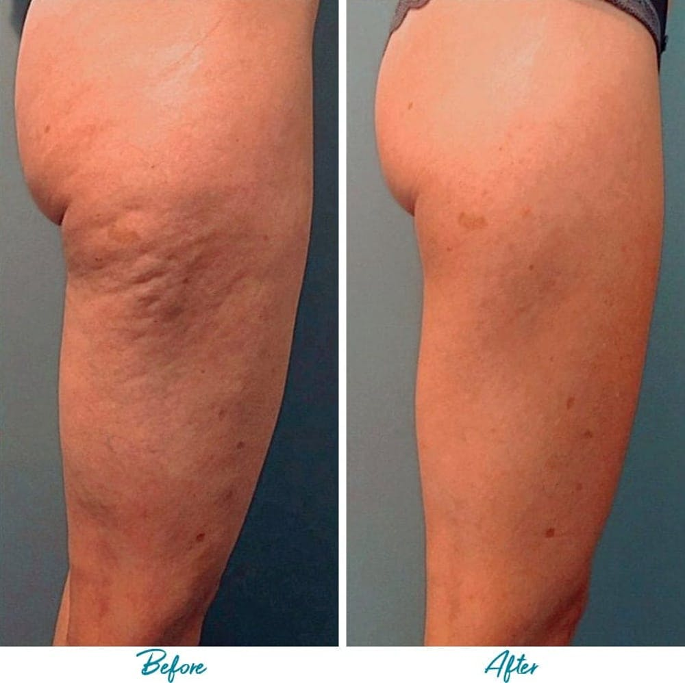 Profound RF Cellulite Gallery - Patient 18616347 - Image 1