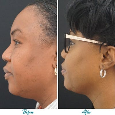 Profound RF Skin Tightening Gallery - Patient 18616379 - Image 1