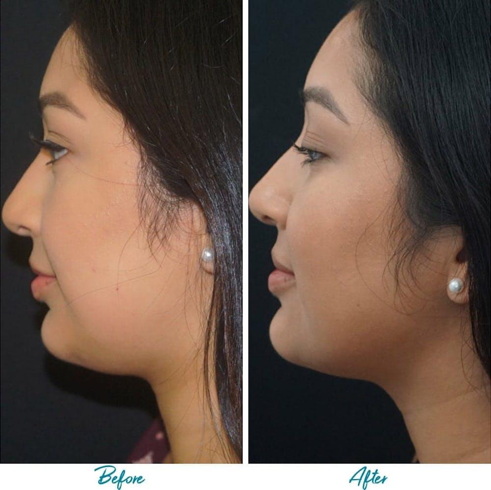Profound RF Skin Tightening Gallery - Patient 18616380 - Image 1