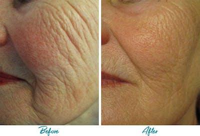 Profound RF Skin Tightening Gallery - Patient 18616381 - Image 1