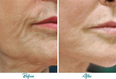 Profound RF Skin Tightening Gallery - Patient 18616382 - Image 1