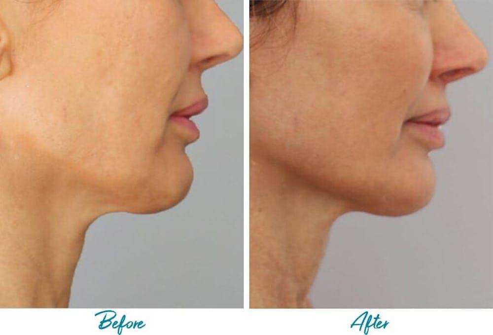 Profound RF Skin Tightening Gallery - Patient 18616383 - Image 1