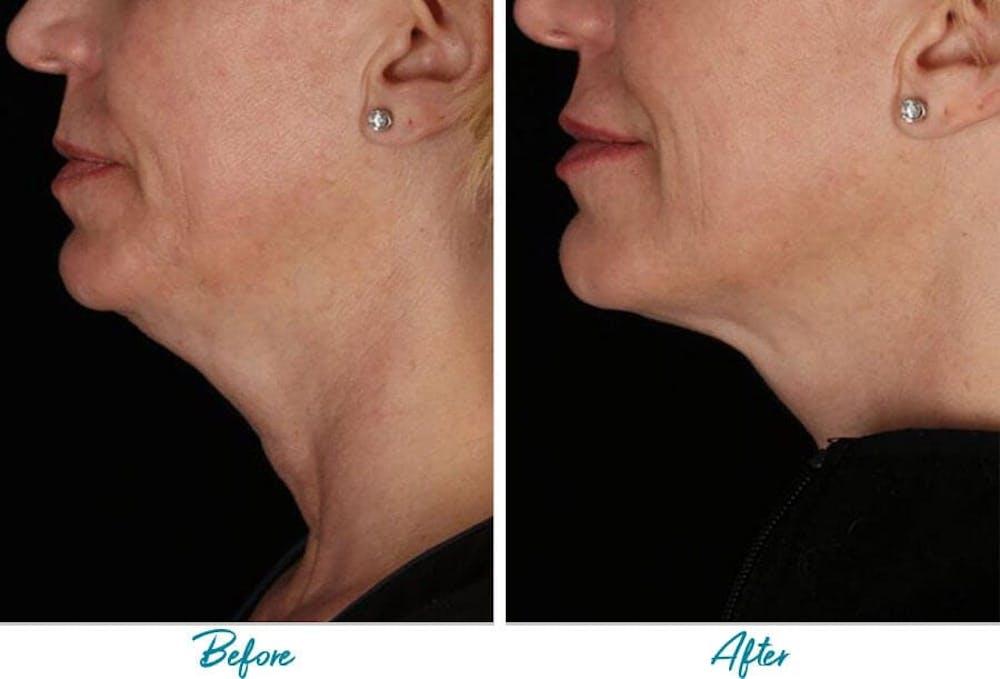 Profound RF Skin Tightening Gallery - Patient 18616384 - Image 1