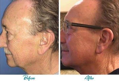 Profound RF Skin Tightening Gallery - Patient 18616385 - Image 1