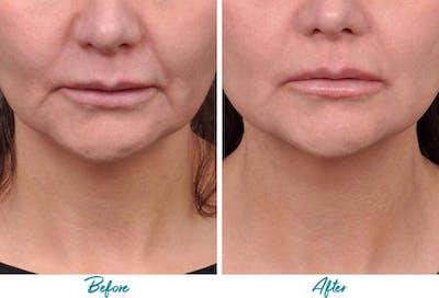 Profound RF Skin Tightening Gallery - Patient 18616386 - Image 1