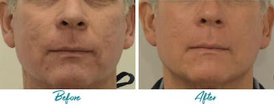 Profound RF Skin Tightening Gallery - Patient 18616387 - Image 1