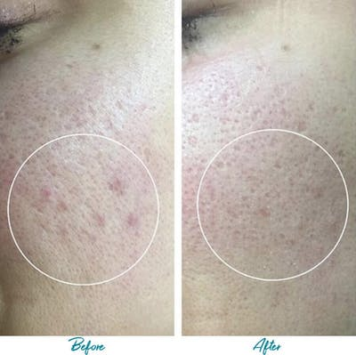 Acne Scars Gallery - Patient 18616517 - Image 1