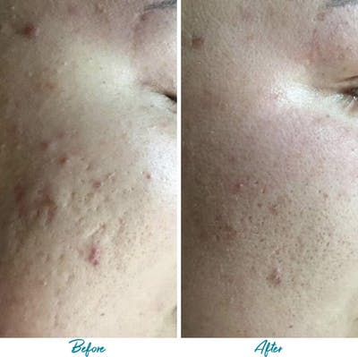Acne Scars Gallery - Patient 18616518 - Image 1