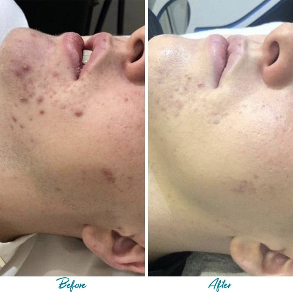 Acne Scars Gallery - Patient 18616519 - Image 1