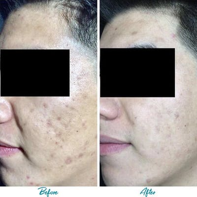 Acne Scars Gallery - Patient 18616520 - Image 1