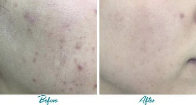 Acne Scars Gallery - Patient 18616522 - Image 1