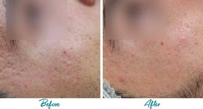 Acne Scars Gallery - Patient 18616523 - Image 1