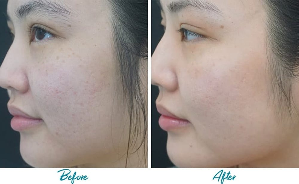 Acne Scars Gallery - Patient 18616525 - Image 1
