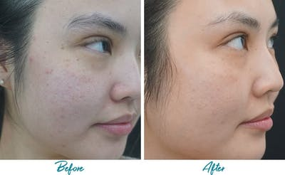 Acne Scars Gallery - Patient 18616525 - Image 2